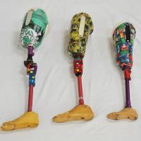 第9回 ソケットのカスタマイズ ―「リハビリ用具」から「自分の足」へ―
