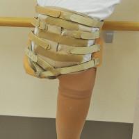 第10回 マタニティ義足 ―妊婦さんの不安に応える―