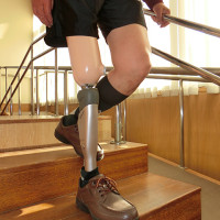 第11回 義足の新技術と価格の話